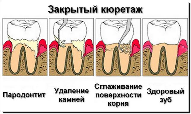 Что делают при кюретаже зубов