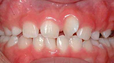 У ребенка кривые зубы